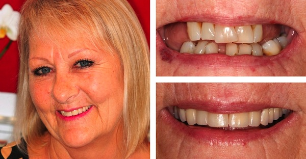 Facelift Dentures in Chichester Dentists Waterlooville Implants