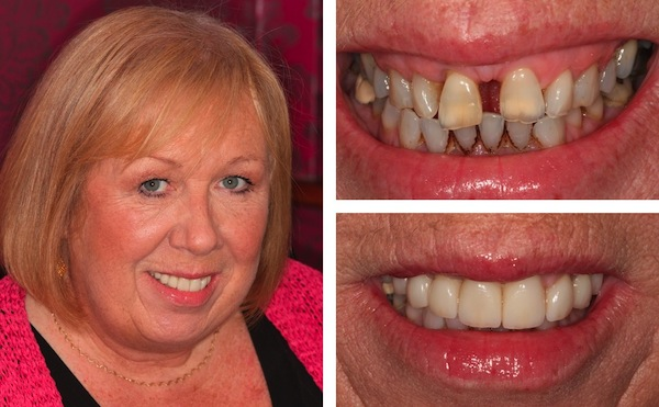 Smile Makeovers Gallery In Chichester Dentists