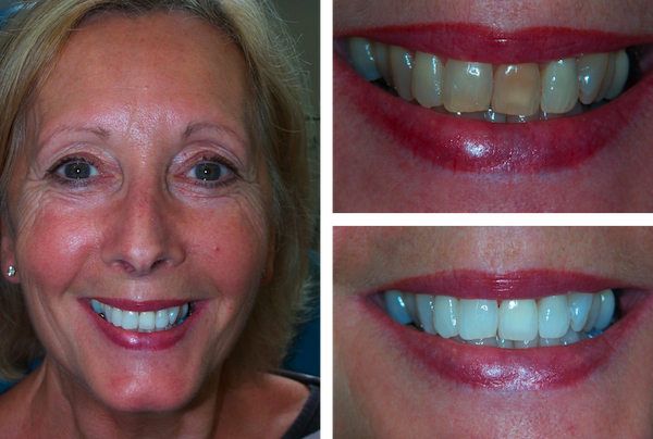 Teeth Whitening In Chichester Dentists Waterlooville Zoom